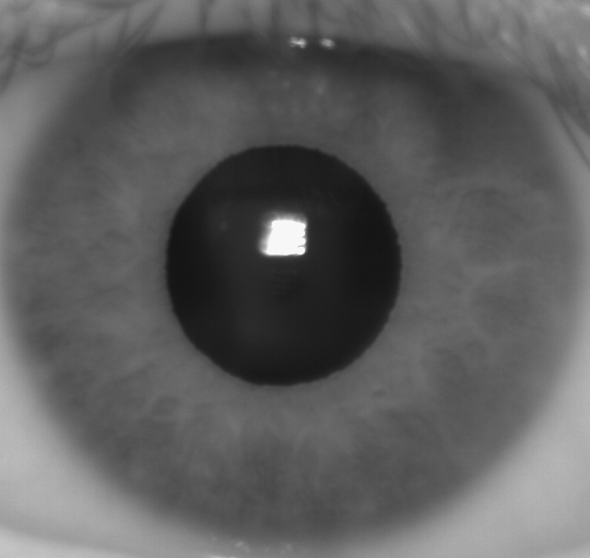 This is the type of image that an infrared iris scanner would capture.