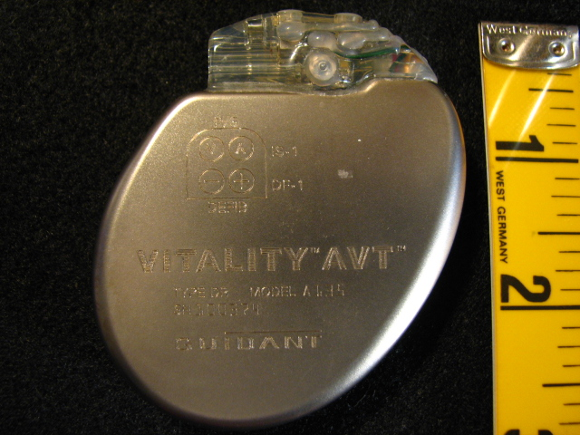 A typical implanted defibrillator device.