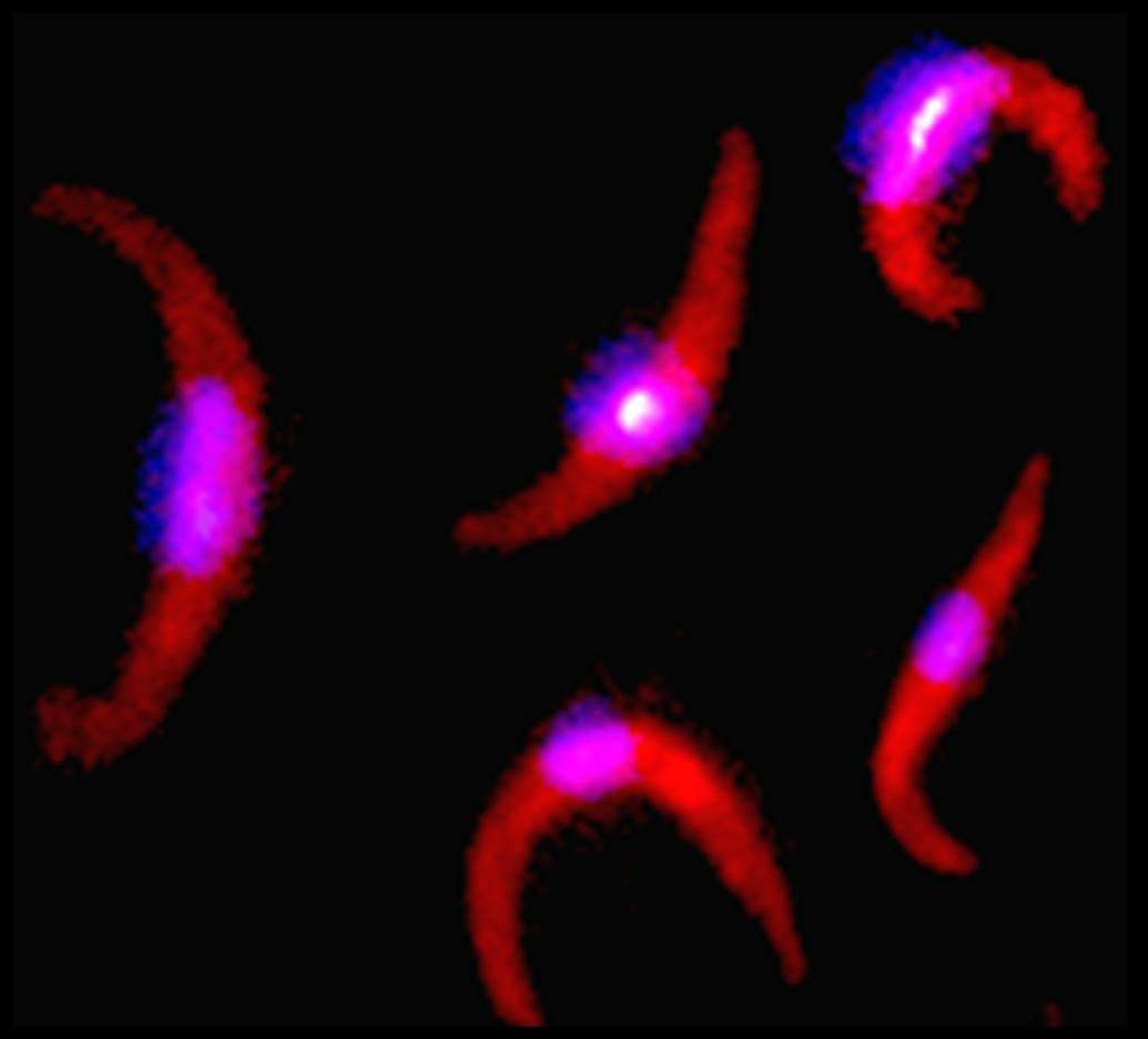 Irradiated Plasmodium falciparum sporozoites.