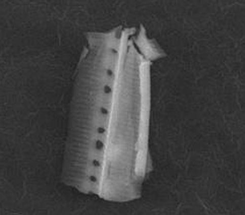 Diatom frustule