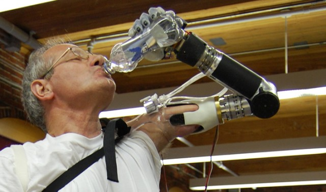 First Prosthetic Arm Wired To Muscles Approved By The Fda