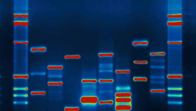 Supreme Court gives tacit approval for government to take anybody's DNA