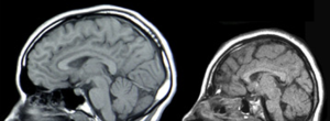 MRIs of a normal individual (left) and a patient with microcephaly caused by genetic mutation (right).