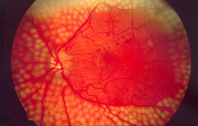 Google DeepMind pairs with NHS to use machine learning to fight blindness