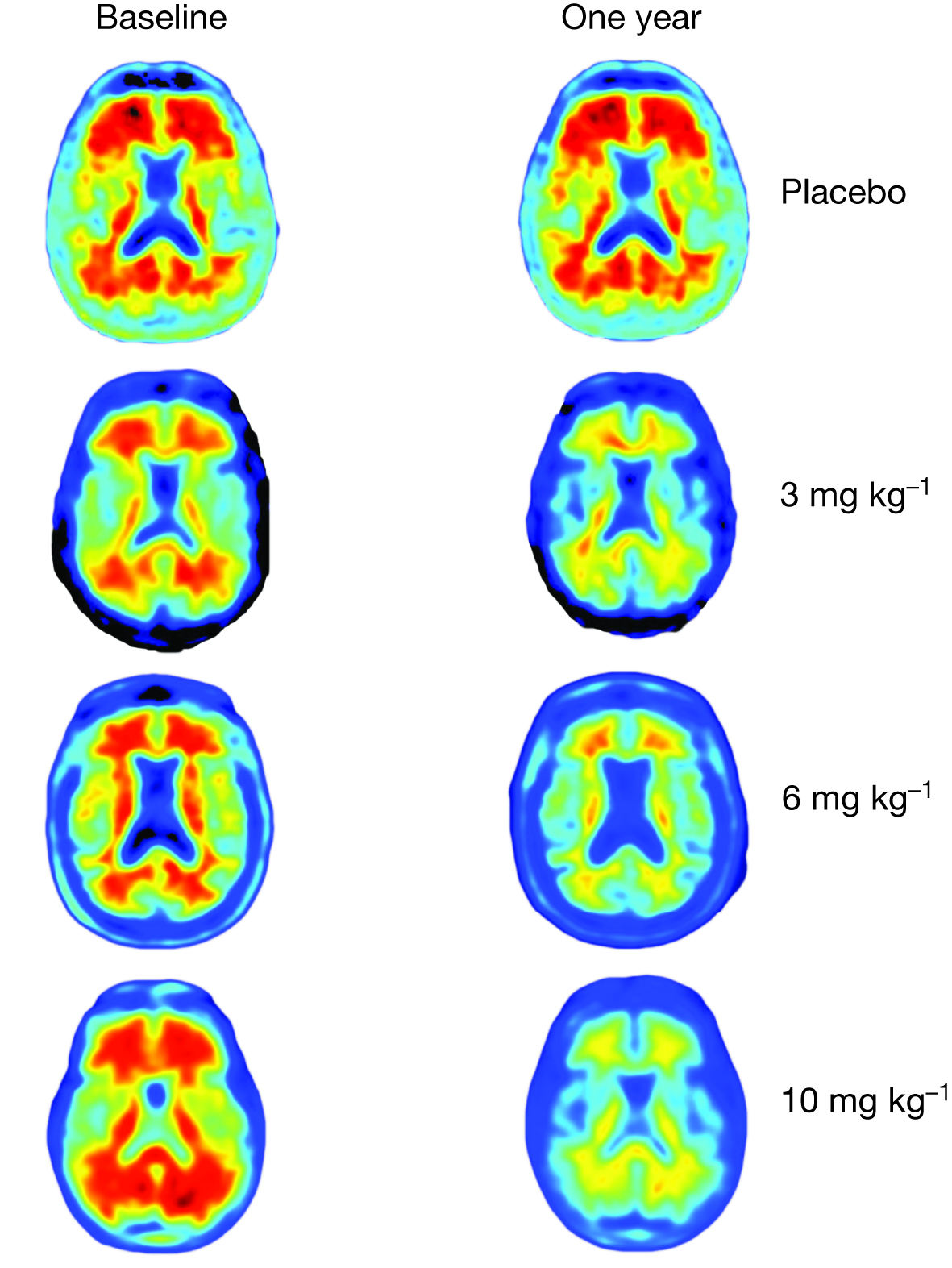 Brain imaging comparison of amyloid plaques (red) in those given placebo and those given aducanumab over the course of a year.