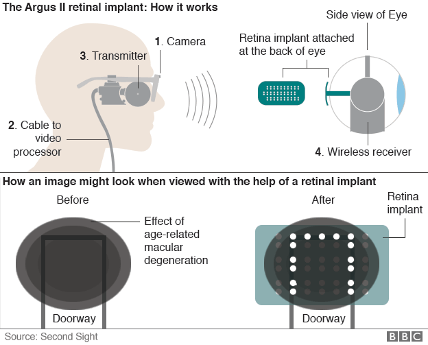 How the Argus II retinal prosthesis works