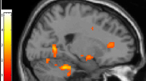 In games, brains work differently when playing vs. a human