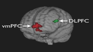 3-D projection of a transparent brain shows the regions of activation: the ventral medial prefrontal cortex (vmPFC) is in red, and the dorsolateral prefrontal cortex (DLPFC) is in green.