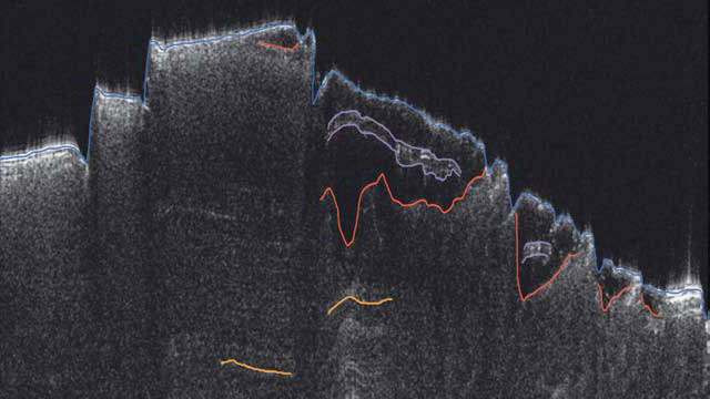 The dry ice deposits lie above the red lines in this image.