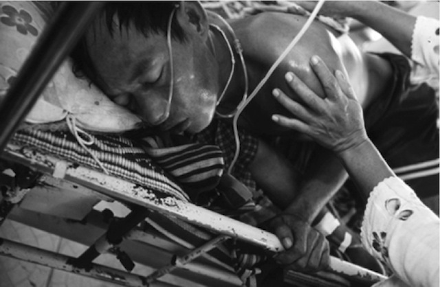 A resident of Myanmar with a severe case of malaria.