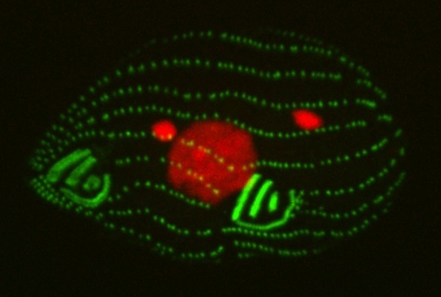 Details like the cellular components of this Tetrahymena may come into sharper focus with a superoscillatory lens