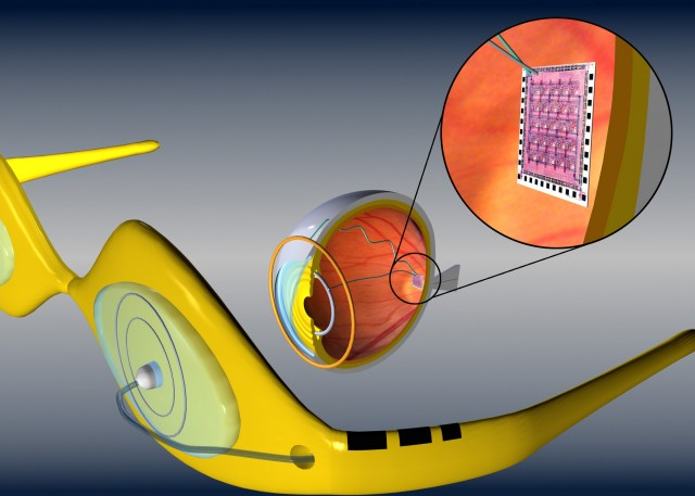 A retinal implant that uses electrodes to stimulate the retinal neurons, receiving images from a camera mounted on glasses.