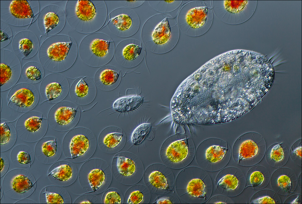 Charles Krebs, who runs his own photography studio, has equipment that's able to capture this image at 400x magnification. It contains Haematococcus (algae), Euplotes (protozoa), and Cyclidium (ciliate).