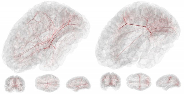 Some comatose brains remain active, but can't enable conscious actions