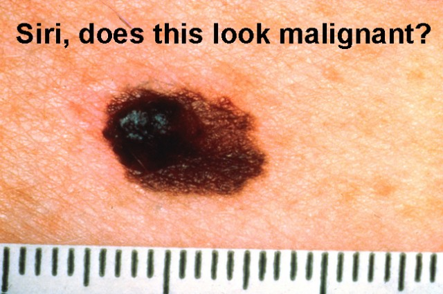 Melanoma misdiagnosis? Yep, there's an app for that