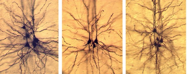 Pyramidal neurons have a distinctive shape and set of connections.