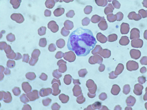A monocyte floats above a backdrop of red blood cells.