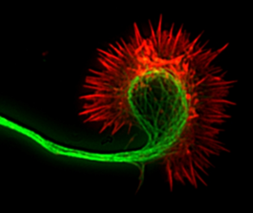 The actin fibers of a nerve cell's growing axon are shown in red here.