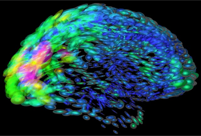 Understanding the brain of a man with no conscious memory