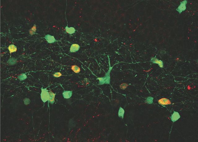 Transplanted neurons (green) successfully integrated into the brains of adult mice.
