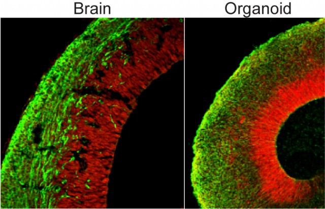 The organization of the organoid is very reminiscent of that of the developing brain.