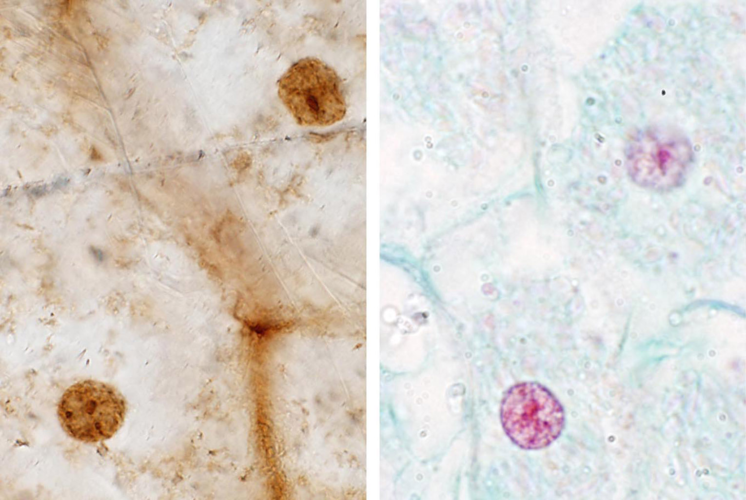 Fossilized cells and nuclei (left) and their modern equivalents.