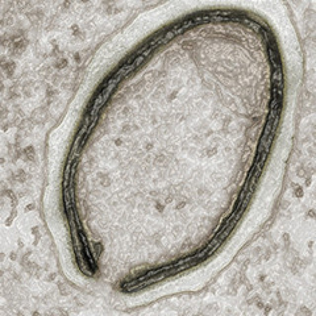 The <em>Pandoravirus</em> (above) is physically similar, but shares very little in the way of genetic material with the newly discovered virus.