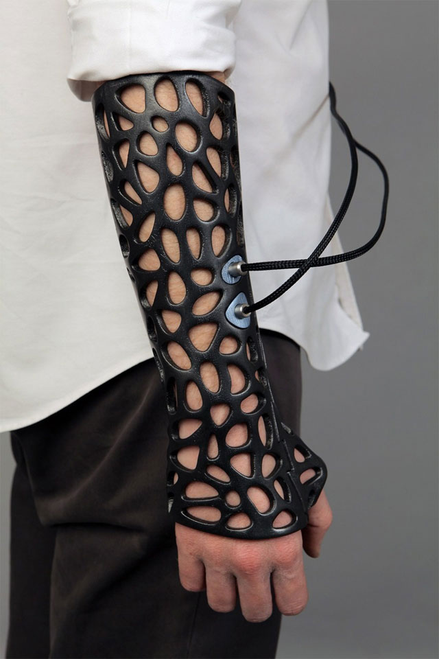 3D-printed ultrasound cast could save us costly surgeries