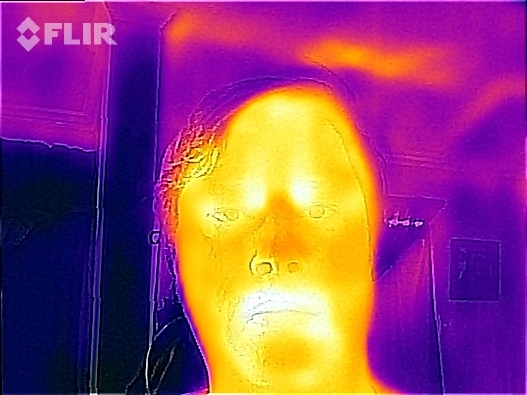 Apparently, my normal every-day resting face is SEVERELY GRUMPY when viewed in infrared.