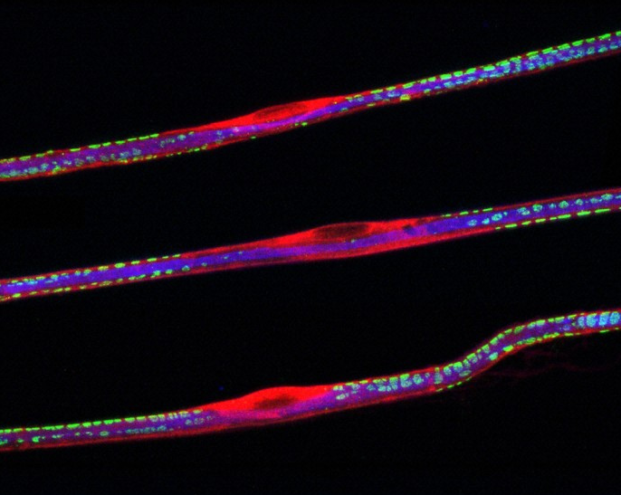 Teased sciatic nerve fibers triple labeled for neurofilament (blue), S100 (red), and DRP2 (green). The S100 protein is expressed in the Schwann cells of the peripheral nervous system and in astroglial cells of the central nervous system. DRP2 (dystrophin-related protein) is thought to be involved in membrane-cytoskeleton interactions at sites of membrane specialization and intercellular contact in various tissues. Disruption of these protein complexes are thought to be a cause of Charcot-Marie-Tooth disease.