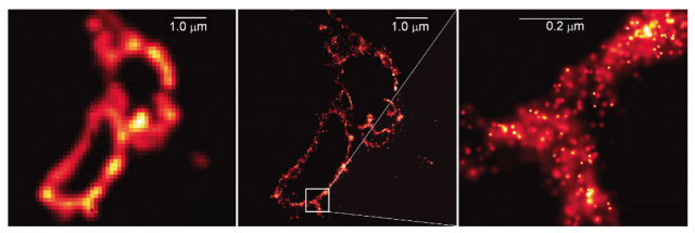 Standard fluorescence microscopy (left) and PALM images (right). Note that the scale bar in the far right image is roughly the diffraction limit.