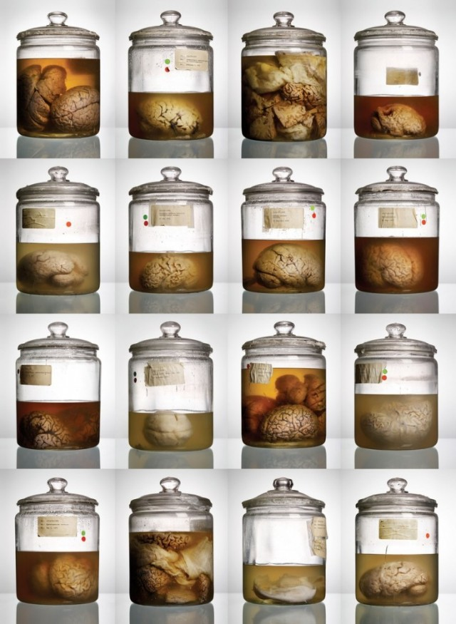 The cover of <em>Malformed: Forgotten Brains of the Texas State Mental Hospital</em> could include 100 more brain jars thanks to Tuesday's discovery at UT San Antonio.