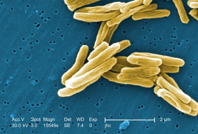 Collapse of Soviet health system may have aided spread of tuberculosis