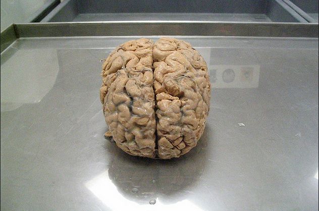 If Software Looks Like A Brain And Acts Like A Brain U2014will