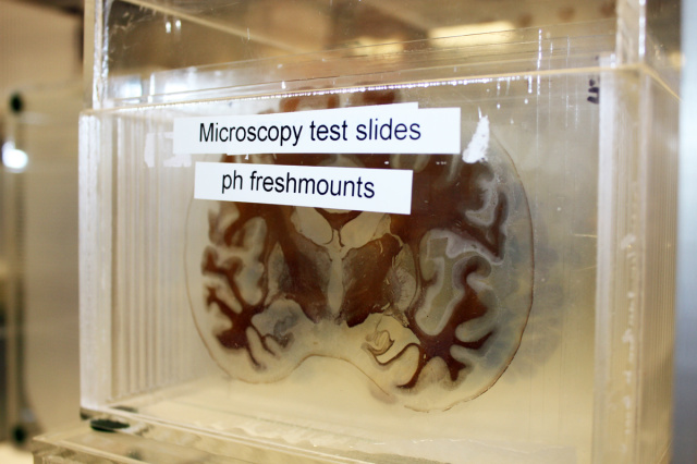 "At San Diego's <a href=""https://arstechnica.com/science/2015/03/stepping-into-the-digital-brain-library-the-google-earth-of-neuroscience/"">Digital Brain Library</a>, each lacy slice of brain is about 70 micrometers thick, or roughly as wide as a human hair."