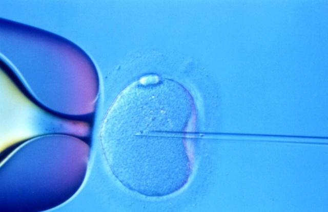 Research team edits the DNA of fertilized human embryos