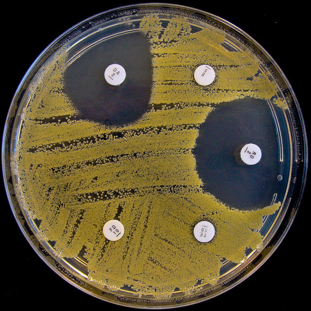 A plate of Staphylococcus aureus bacterial colonies growing amid white, antibiotic-emitting discs. The clear spots indicate that the antibiotic on the disc can kill the bacteria; growth around a disc means the bacteria are resistant to that emitted drug.