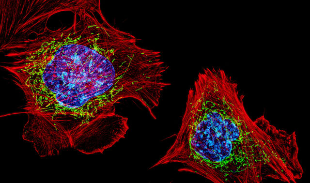 In this magnified image of mouse cells, the nucleus is blue, the mitochondria are green, and the cell walls are red. Every cell has hundreds or even thousands of mitochondria producing energy.