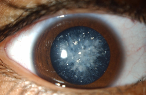 steroid induced cataract dose