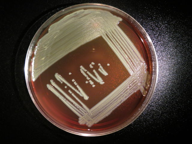 Elizabethkingia anophelis growing on a blood agar plate.