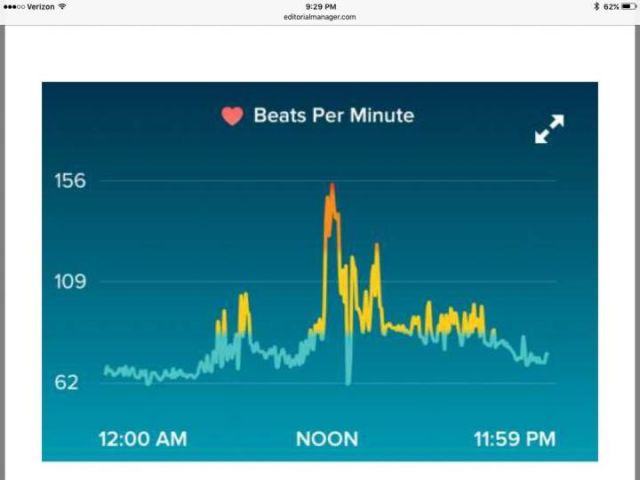 ER docs get heart rate info from Fitbit, save patient's life
