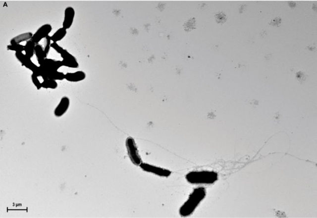 Strands of beta amyloid fibrils form around yeast in culture media.