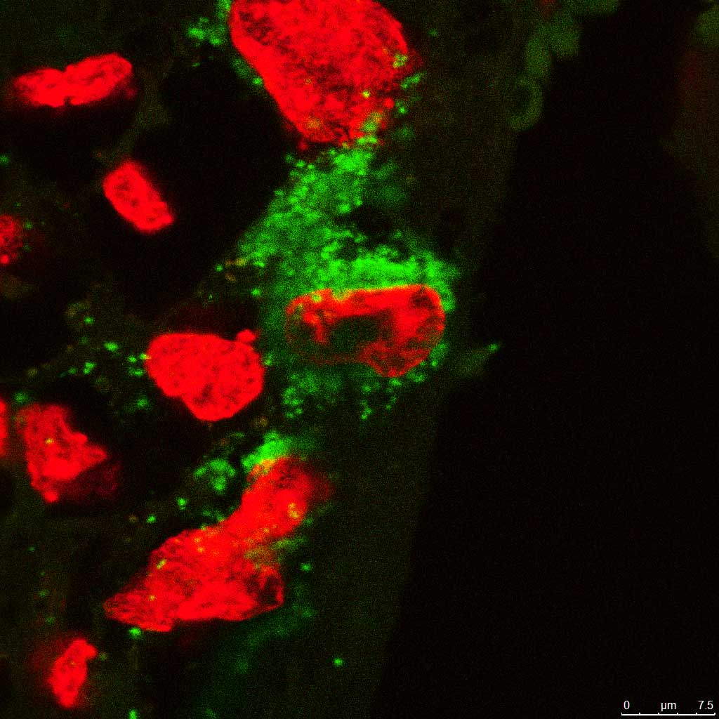 This fluorescent image shows the Zika virus (green) inside a placenta cell (nuclei labeled in red).
