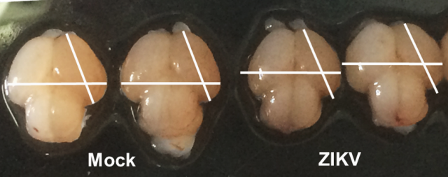 This photo demonstrates the difference in size in Zika virus-infected vs. uninfected fetal mouse brains.