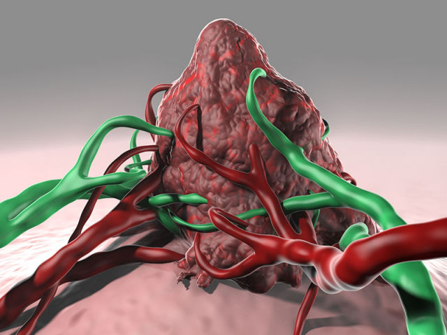 An artist's rendering of a brain tumor that can be killed off with the help of a virus.