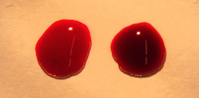 Two drops of blood are shown with a bright red oxygenated drop on the left and a deoxygenated blood on the right.