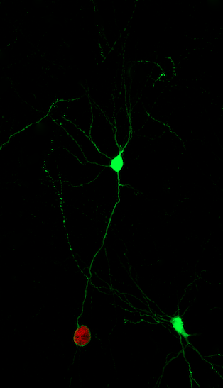 An image of GFP+ neurons, 1 is infected with a cyst (red) and one is not.