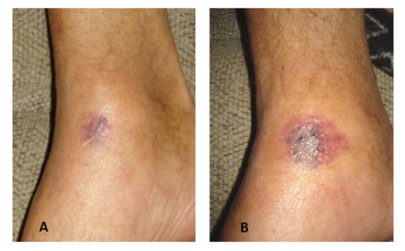 Initial stages of a fatal V. vulnificus wound infection in a 59-year-old man. His infection progressed more quickly than Funk's, with images A and B taken just four hours apart. This patient, infected in the Gulf of Mexico, died a little more than 48 hours after exposure to the bacteria.