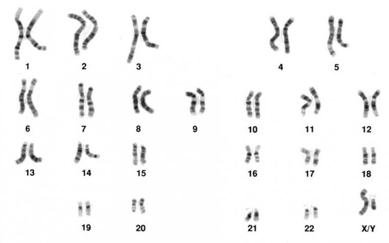 Major genetic defects are often identified by looking for oddities in the chromosome pairs.