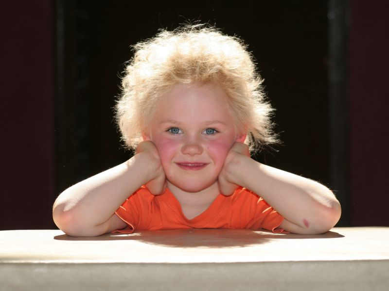 Uncombable Hair Syndrome is real, and now we know what causes it